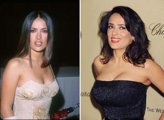 celebrities implantes de pecho más caros (3)