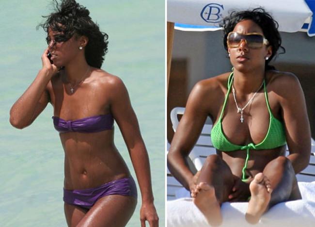 celebrities implantes de pecho más caros (5)