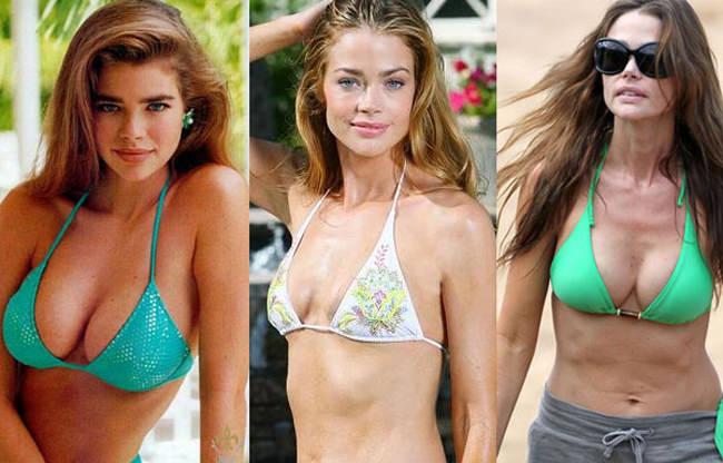 celebrities implantes de pecho más caros (7)