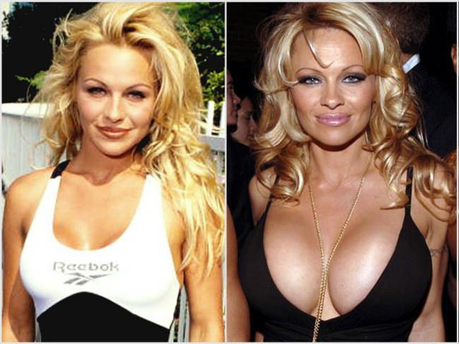 celebrities implantes de pecho más caros (8)